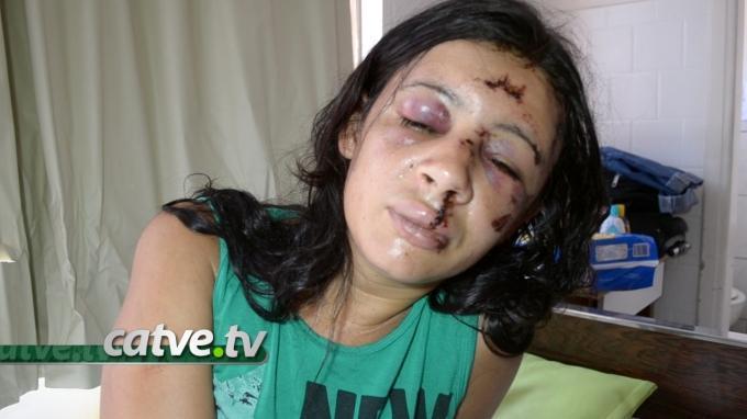 Garota de programa agredida